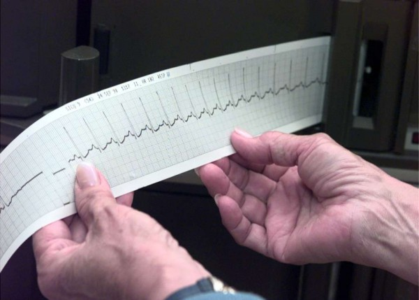 Men's hearts age differently from women's