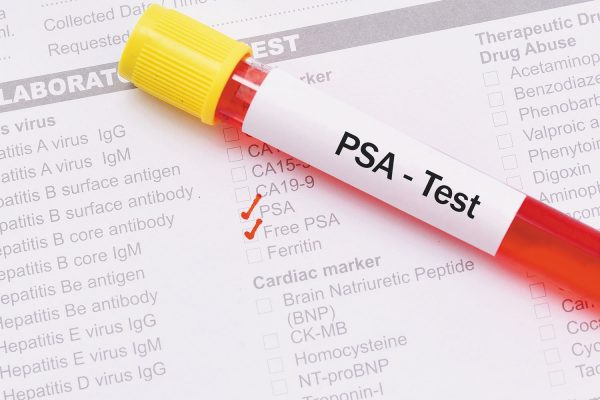 Prostate screening guideline highlights patient choice