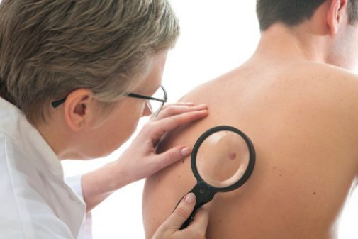 Skin cancer: Sun exposure is just one piece of the puzzle