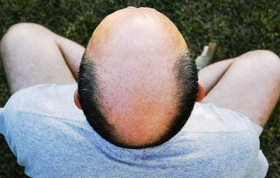 3 Easy Ways to Shave Your Bald Head